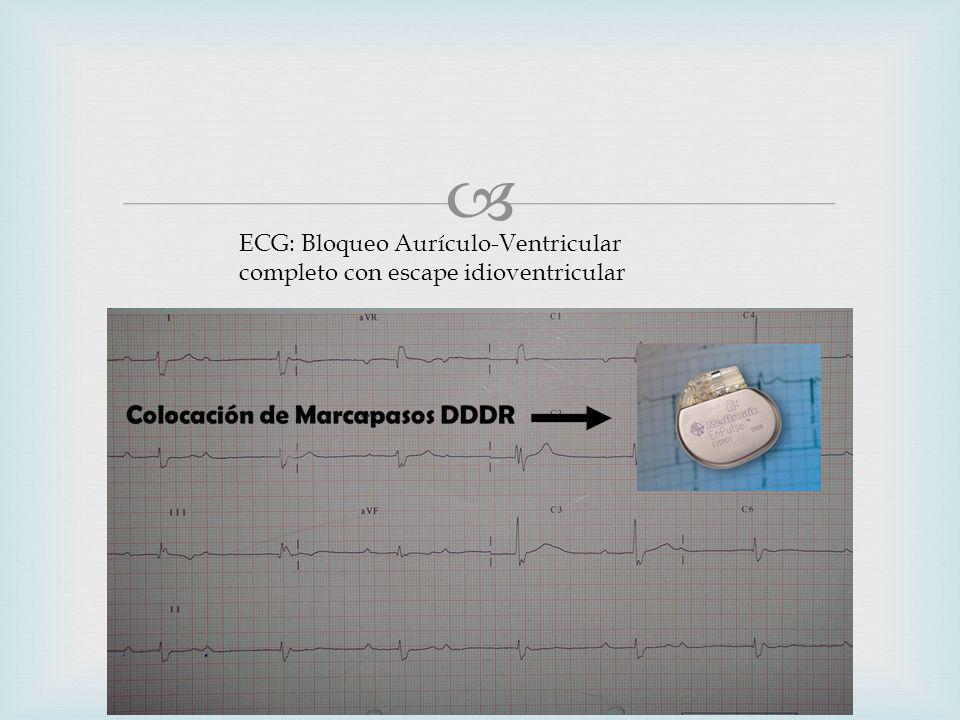 ECG: Bloqueo Aurículo-Ventricular completo con escape idioventricular