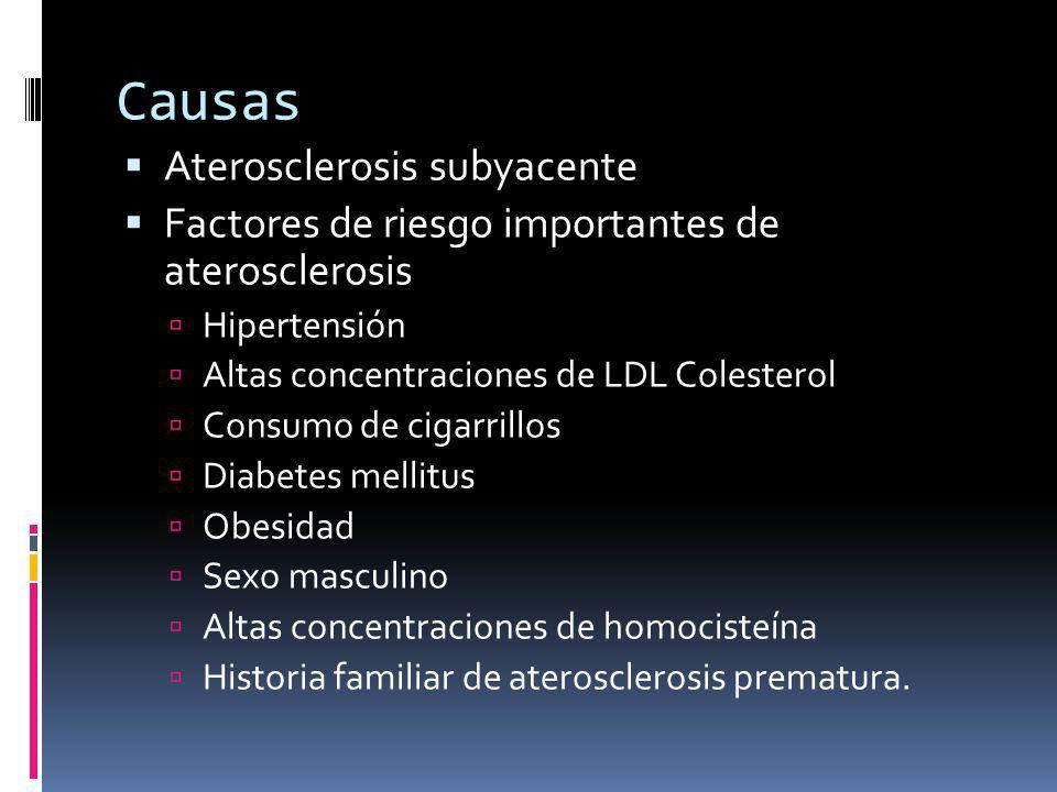 Causas Aterosclerosis subyacente Factores de riesgo importantes de aterosclerosis Hipertensión Altas concentraciones de LDL Colesterol Consumo de cigarrillos Diabetes mellitus Obesidad Sexo masculino Altas concentraciones de homocisteína Historia familiar de aterosclerosis prematura.