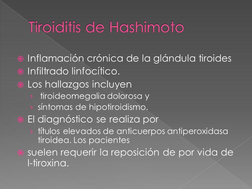 Inflamación crónica de la glándula tiroides Infiltrado linfocítico. Los hallazgos incluyen tiroideomegalia dolorosa y síntomas de hipotiroidismo. El d