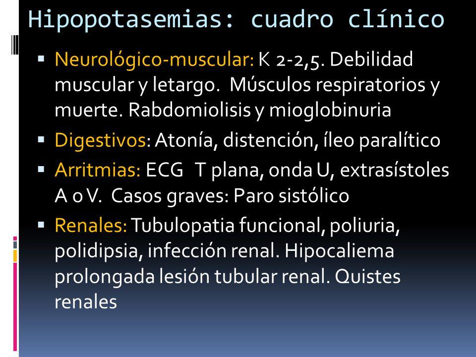 Hipopotasemias: cuadro clínico Neurológico-muscular: K 2-2,5.