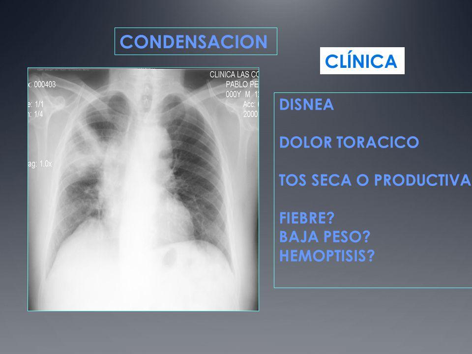CONDENSACION DISNEA DOLOR TORACICO TOS SECA O PRODUCTIVA FIEBRE? BAJA PESO? HEMOPTISIS? CLÍNICA