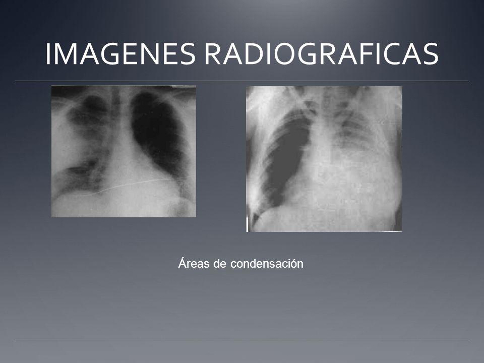 IMAGENES RADIOGRAFICAS Áreas de condensación