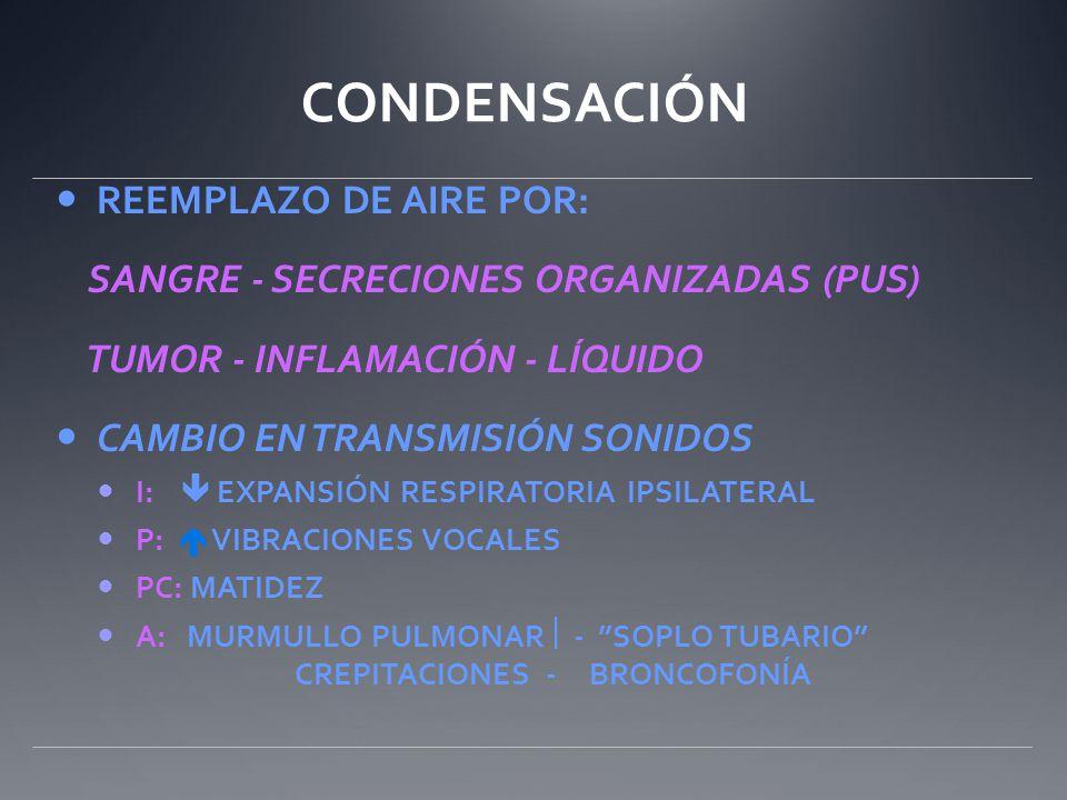 CONDENSACIÓN REEMPLAZO DE AIRE POR: SANGRE - SECRECIONES ORGANIZADAS (PUS) TUMOR - INFLAMACIÓN - LÍQUIDO CAMBIO EN TRANSMISIÓN SONIDOS I: EXPANSIÓN RE