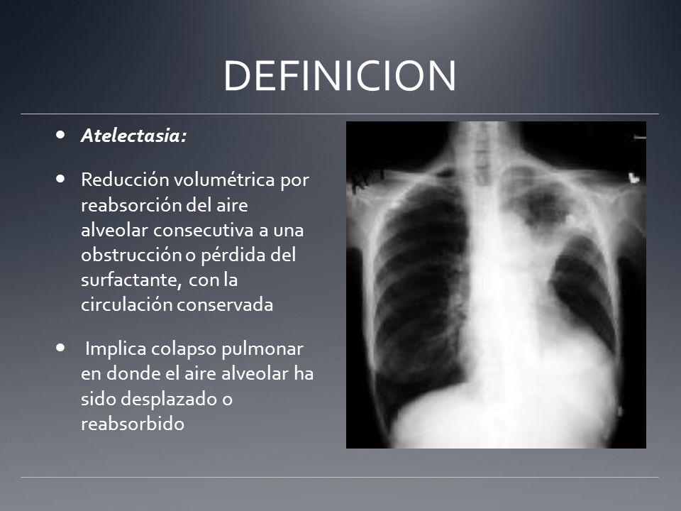DEFINICION Atelectasia: Reducción volumétrica por reabsorción del aire alveolar consecutiva a una obstrucción o pérdida del surfactante, con la circul