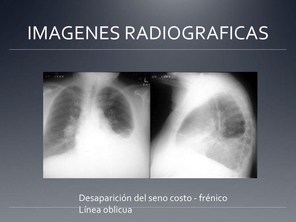 IMAGENES RADIOGRAFICAS Desaparición del seno costo - frénico Línea oblicua