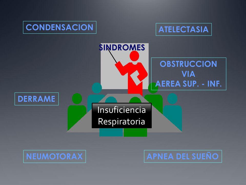 SINDROMES RESPIRATORIOS CONDENSACION NEUMONIA SANGRE o LÍQUIDO TUMOR ATELECTASIA OBSTRUCTIVA RELAJACION ADHESIVA FIBROSA DERRAME EXUDADO TRANSUDADO SANGRE LINFA OBSTRUCCION VIA AEREA CUERPO EXTRAÑO EDEMA LARINGEO ASMA EPOC APNEA DEL SUEÑO CENTRAL- OBSTRUCTIVA NEUMOTORAX TRAUMÁTICO ESPONTÁNEO