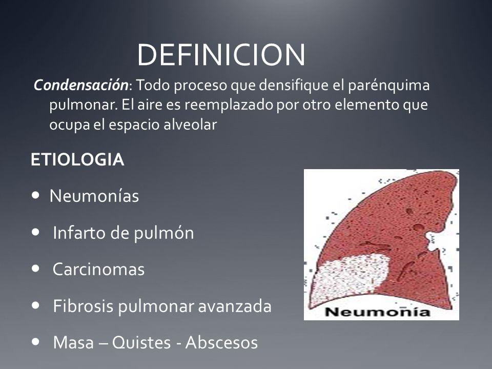 DEFINICION Condensación: Todo proceso que densifique el parénquima pulmonar. El aire es reemplazado por otro elemento que ocupa el espacio alveolar ET