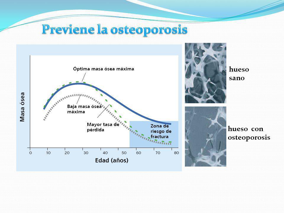 hueso sano hueso con osteoporosis