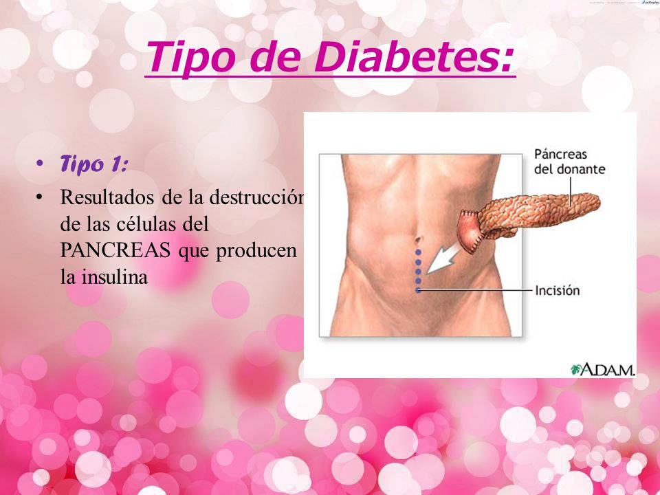 Diabetes La Diabetes es una enfermedad en la que los niveles de la glucosa (Azúcar) en la sangre están muy altos.