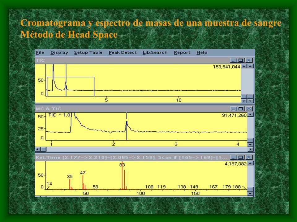 Cromatograma y espectro de masas de una muestra de sangre Método de Head Space