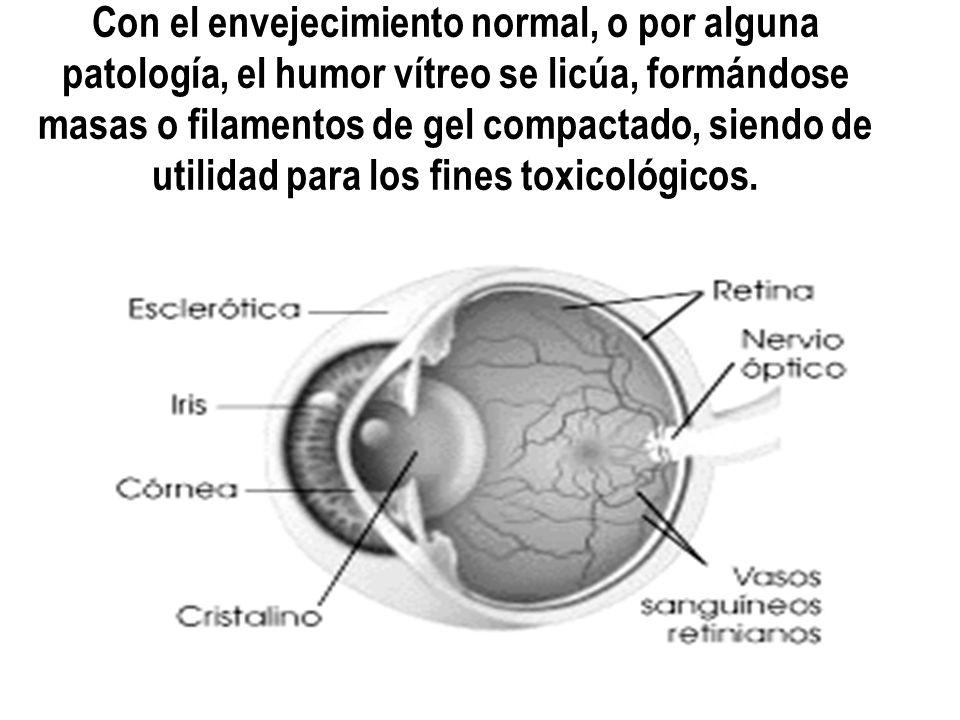 Con el envejecimiento normal, o por alguna patología, el humor vítreo se licúa, formándose masas o filamentos de gel compactado, siendo de utilidad pa