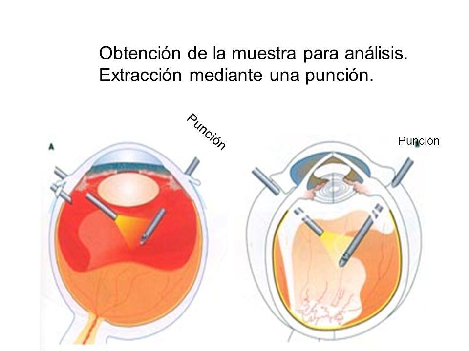 Obtención de la muestra para análisis. Extracción mediante una punción. Punción
