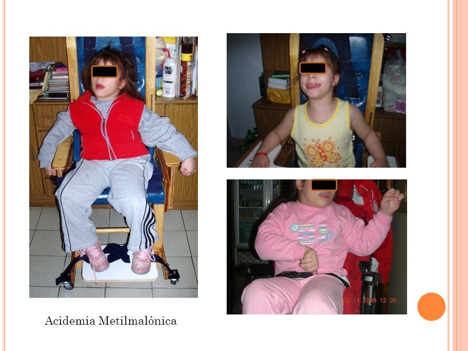 Acidemia Metilmalónica
