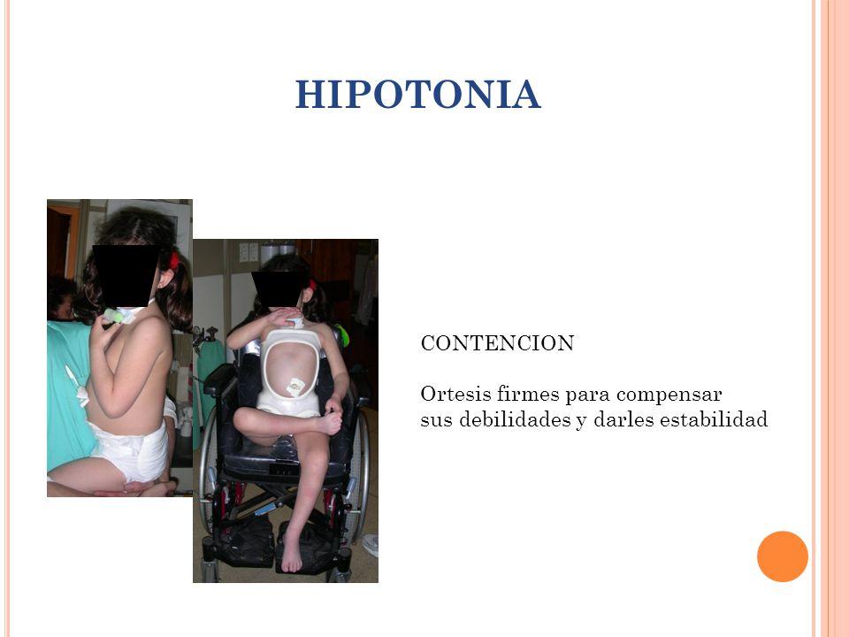 HIPOTONIA CONTENCION Ortesis firmes para compensar sus debilidades y darles estabilidad
