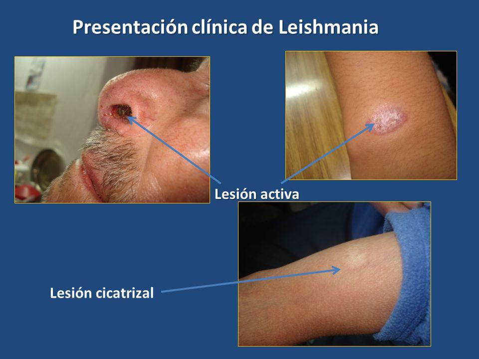 Lesión cicatrizal Lesión activa Presentación clínica de Leishmania
