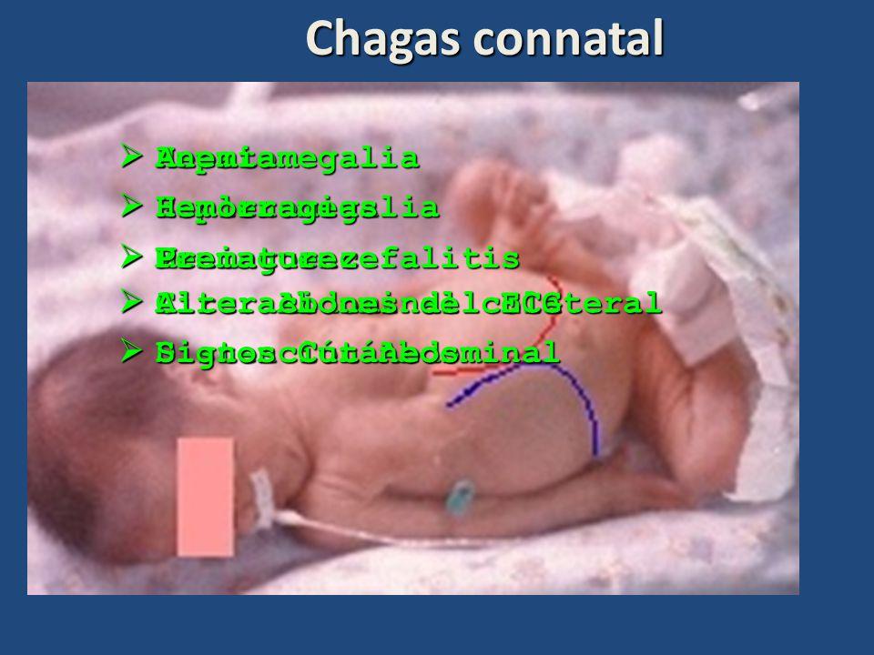 Chagas connatal Hepatomegalia Hepatomegalia Circ. Abdominal colateral Circ. Abdominal colateral Esplenomegalia Esplenomegalia Meningoencefalitis Menin