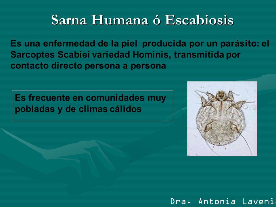 Sarna Humana ó Escabiosis Es una enfermedad de la piel producida por un parásito: el Sarcoptes Scabiei variedad Hominis, transmitida por contacto dire