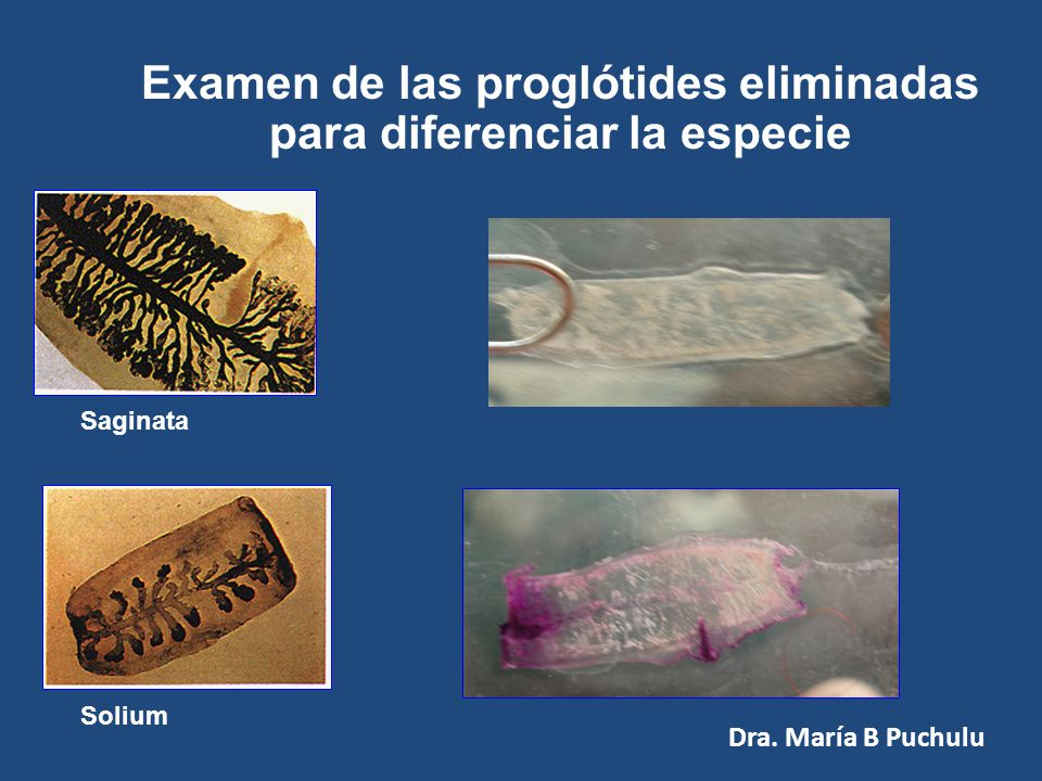 Diagnóstico Fundamental el interrogatorio Solicitar traer el elemento eliminado para observación Macro y microscópica Dra. María B Puchulu