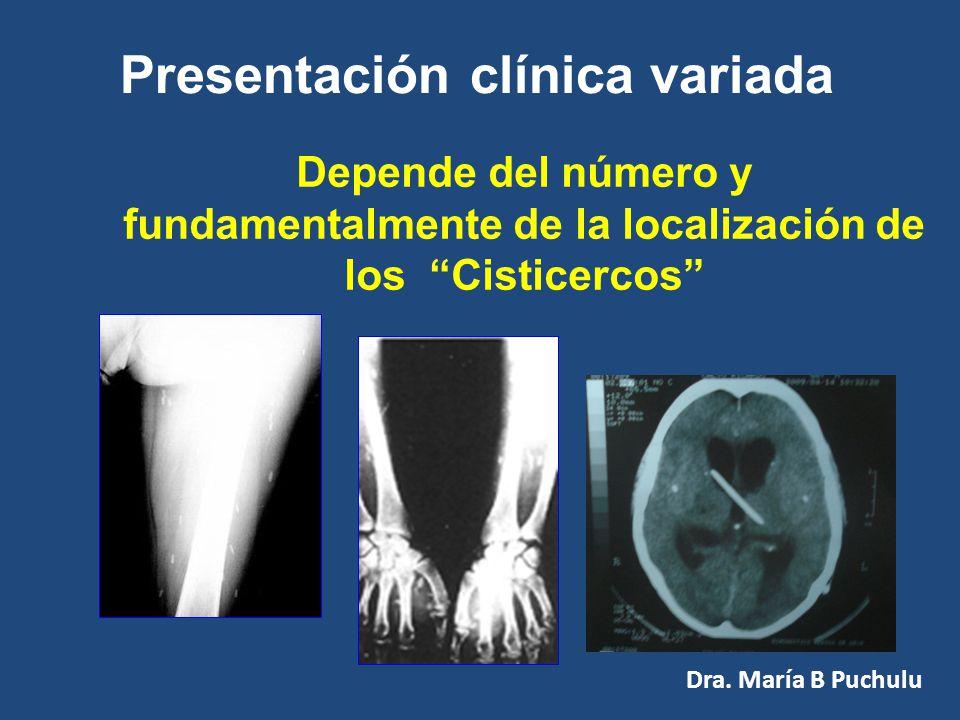 Es estar parasitado por la forma LARVAL de la Tenia Solium Cisticercosis Se produce por la ingesta accidental de huevos de T. solium Dra. María B Puch