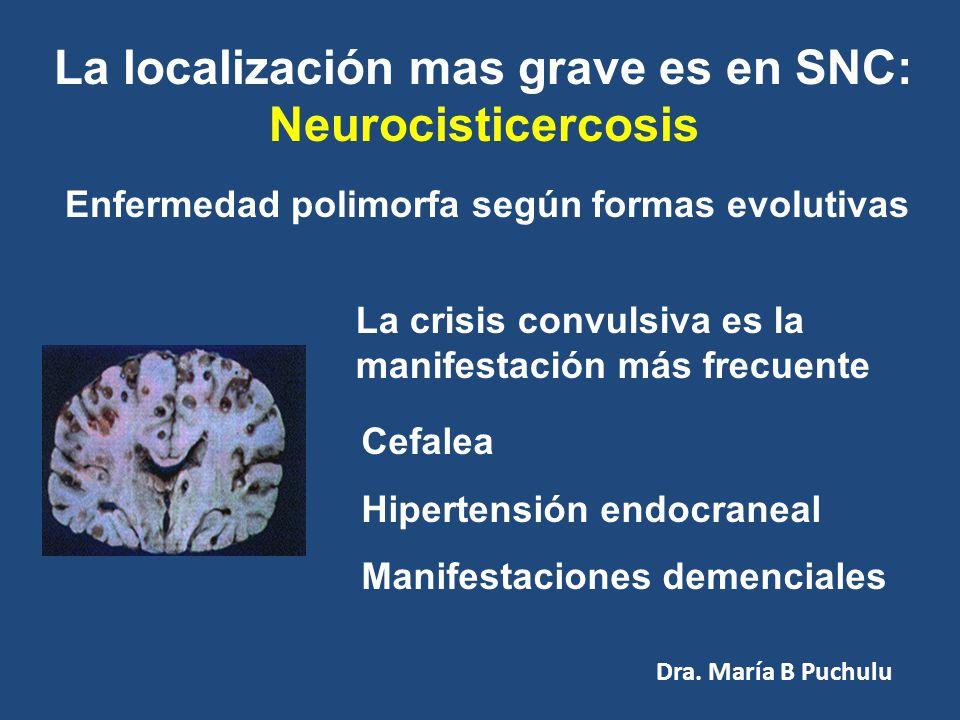 Presentación clínica variada Depende del número y fundamentalmente de la localización de los Cisticercos Dra. María B Puchulu