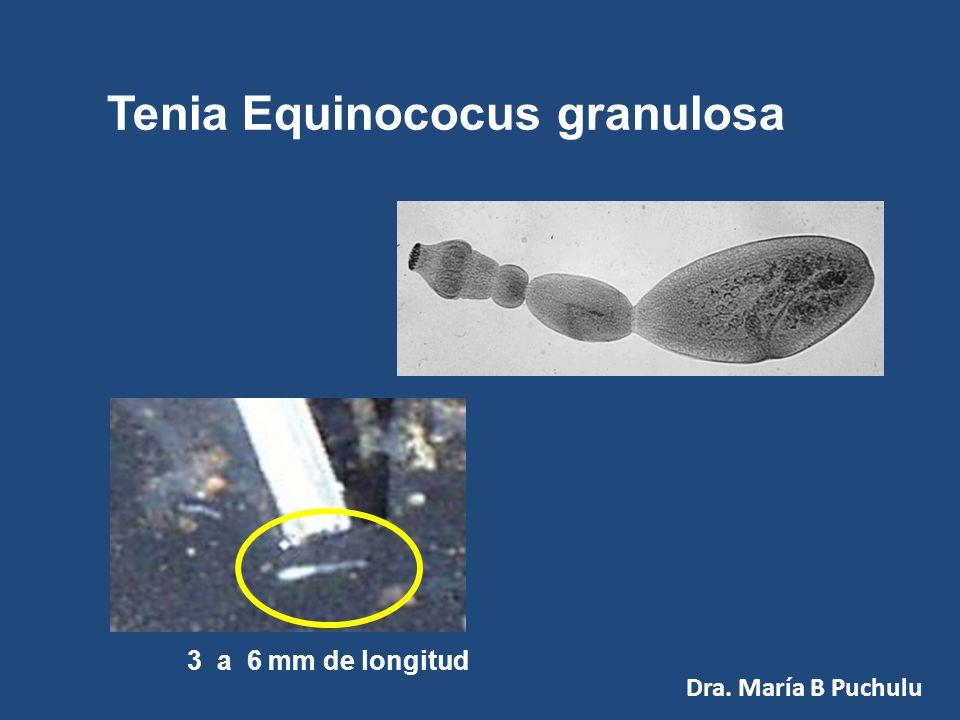 Diagnóstico Examen Parasitológico seriado de Materia Fecal (huevos y tenias) Huevo de Hymenolepis nana Dra. María B Puchulu