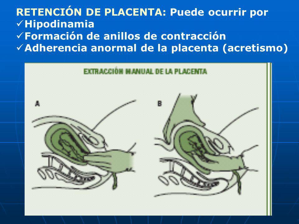 RETENCIÓN DE PLACENTA: Puede ocurrir por Hipodinamia Formación de anillos de contracción Adherencia anormal de la placenta (acretismo)