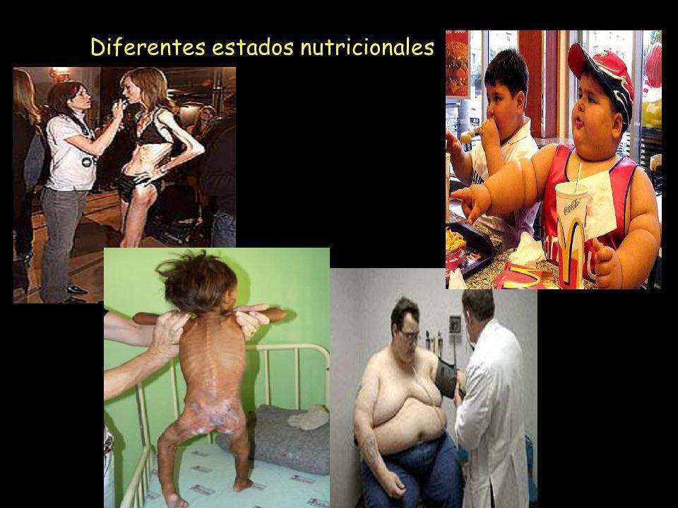 Diferentes estados nutricionales