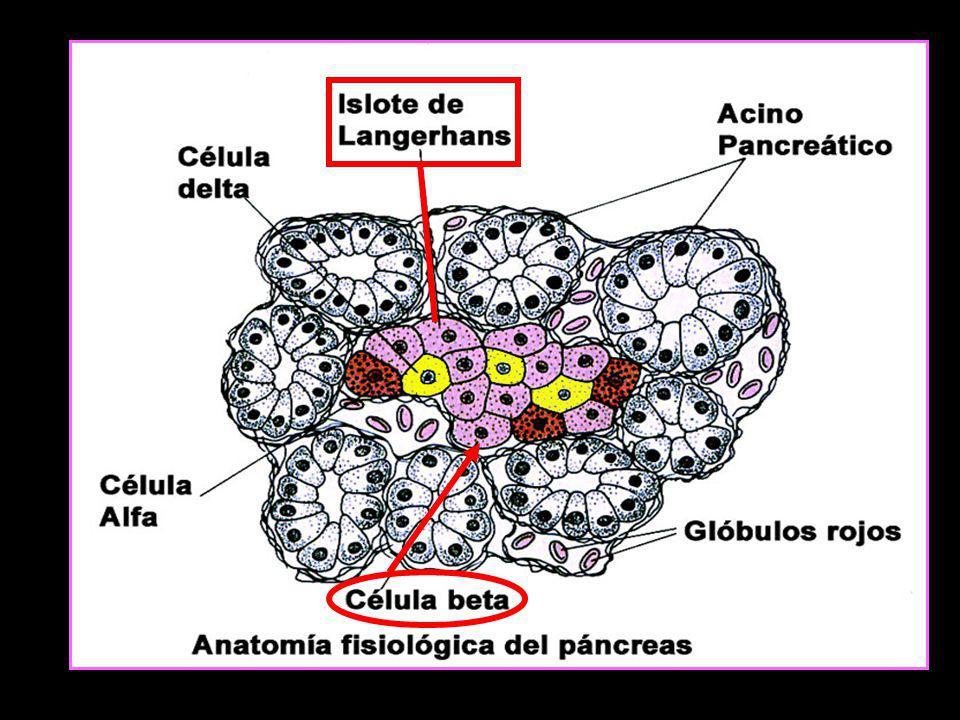 CLASIFICACION ETIOLOGICA SIMPLIFICADA DE DIABETES 1.