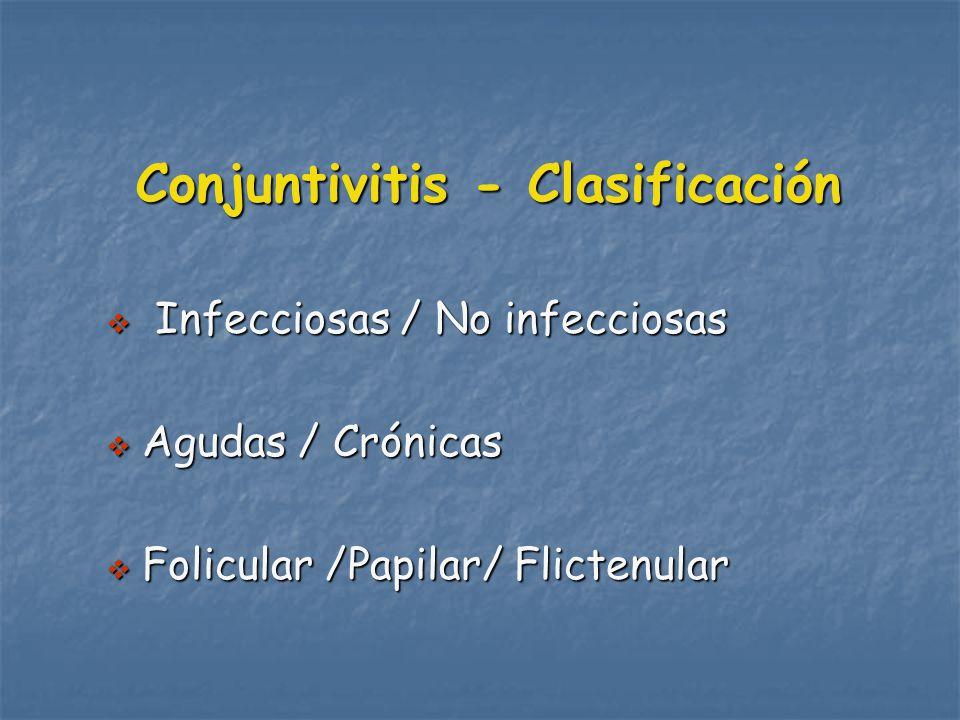 Conjuntivitis - Clasificación Infecciosas / No infecciosas Infecciosas / No infecciosas Agudas / Crónicas Agudas / Crónicas Folicular /Papilar/ Flictenular Folicular /Papilar/ Flictenular