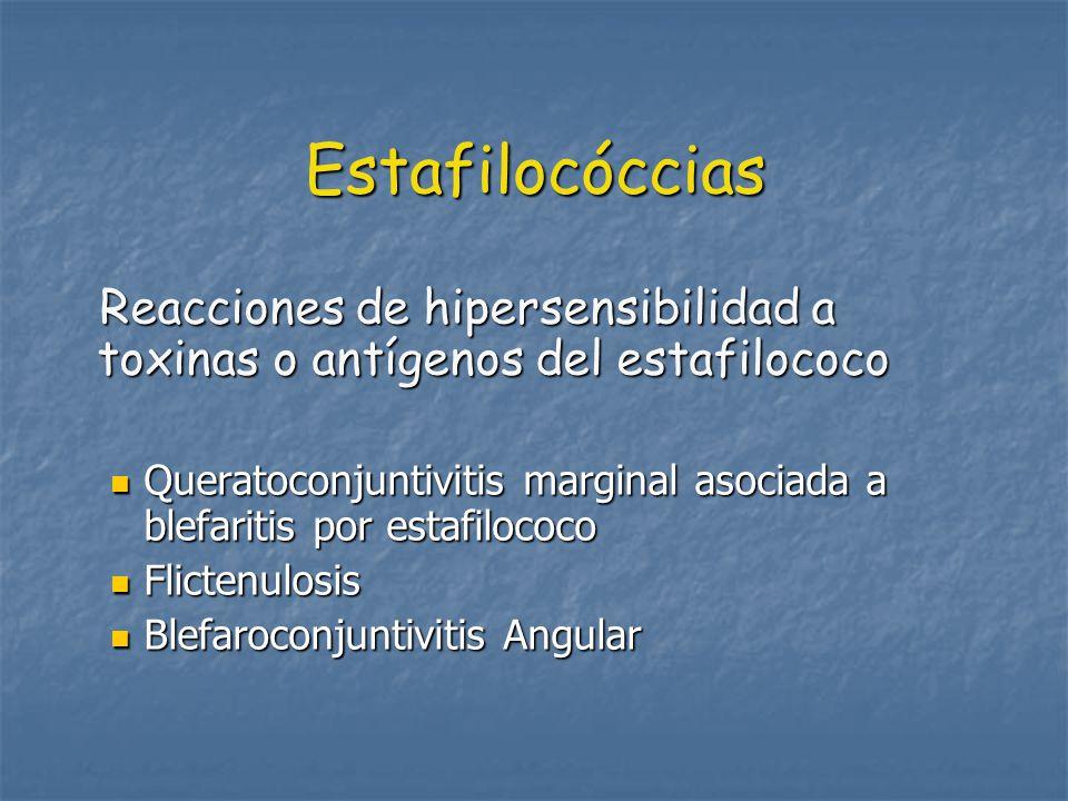 Estafilocóccias Reacciones de hipersensibilidad a toxinas o antígenos del estafilococo Reacciones de hipersensibilidad a toxinas o antígenos del estafilococo Queratoconjuntivitis marginal asociada a blefaritis por estafilococo Queratoconjuntivitis marginal asociada a blefaritis por estafilococo Flictenulosis Flictenulosis Blefaroconjuntivitis Angular Blefaroconjuntivitis Angular