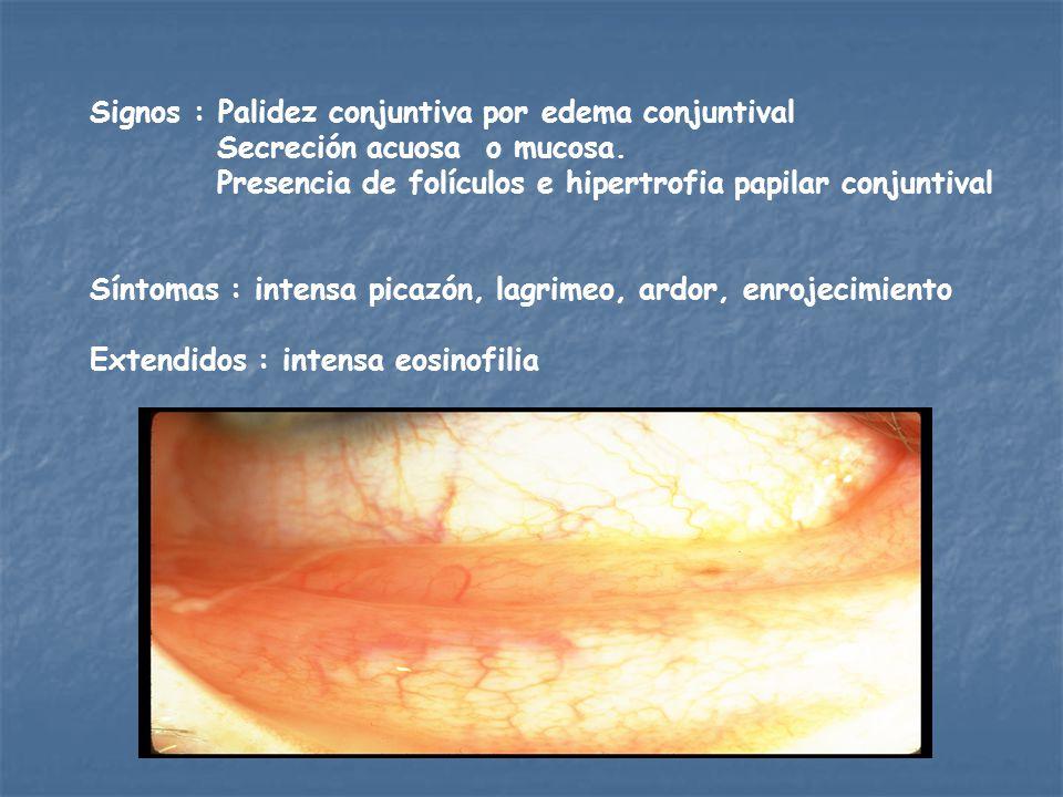 Signos : Palidez conjuntiva por edema conjuntival Secreción acuosa o mucosa.