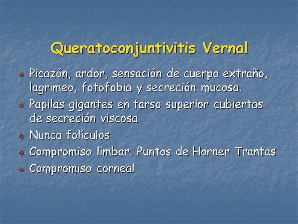Queratoconjuntivitis Vernal Picazón, ardor, sensación de cuerpo extraño, lagrimeo, fotofobia y secreción mucosa.