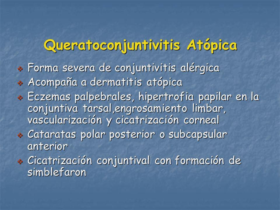 Queratoconjuntivitis Atópica Forma severa de conjuntivitis alérgica Forma severa de conjuntivitis alérgica Acompaña a dermatitis atópica Acompaña a dermatitis atópica Eczemas palpebrales, hipertrofia papilar en la conjuntiva tarsal,engrosamiento limbar, vascularización y cicatrización corneal Eczemas palpebrales, hipertrofia papilar en la conjuntiva tarsal,engrosamiento limbar, vascularización y cicatrización corneal Cataratas polar posterior o subcapsular anterior Cataratas polar posterior o subcapsular anterior Cicatrización conjuntival con formación de simblefaron Cicatrización conjuntival con formación de simblefaron