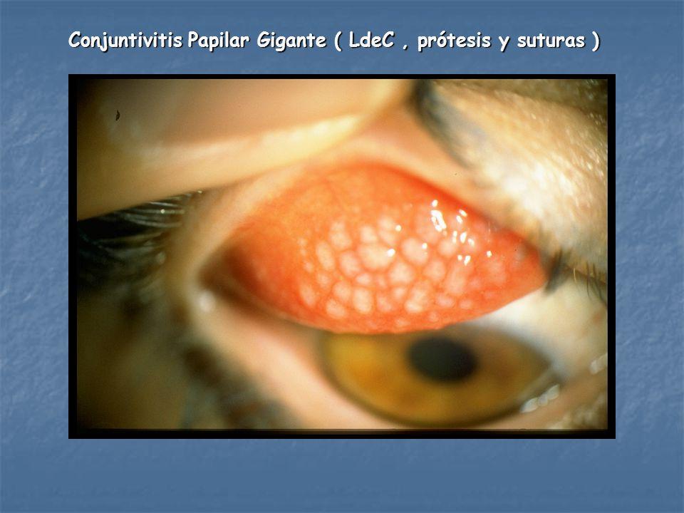Conjuntivitis Papilar Gigante ( LdeC, prótesis y suturas )