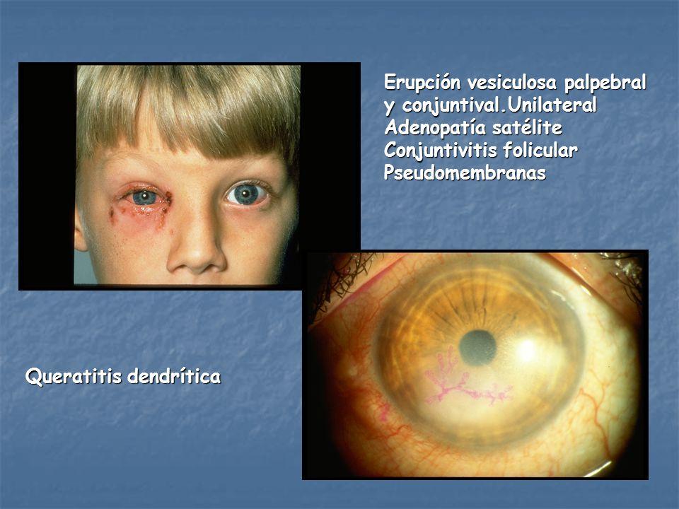 Erupción vesiculosa palpebral y conjuntival.Unilateral Adenopatía satélite Conjuntivitis folicular Pseudomembranas Queratitis dendrítica