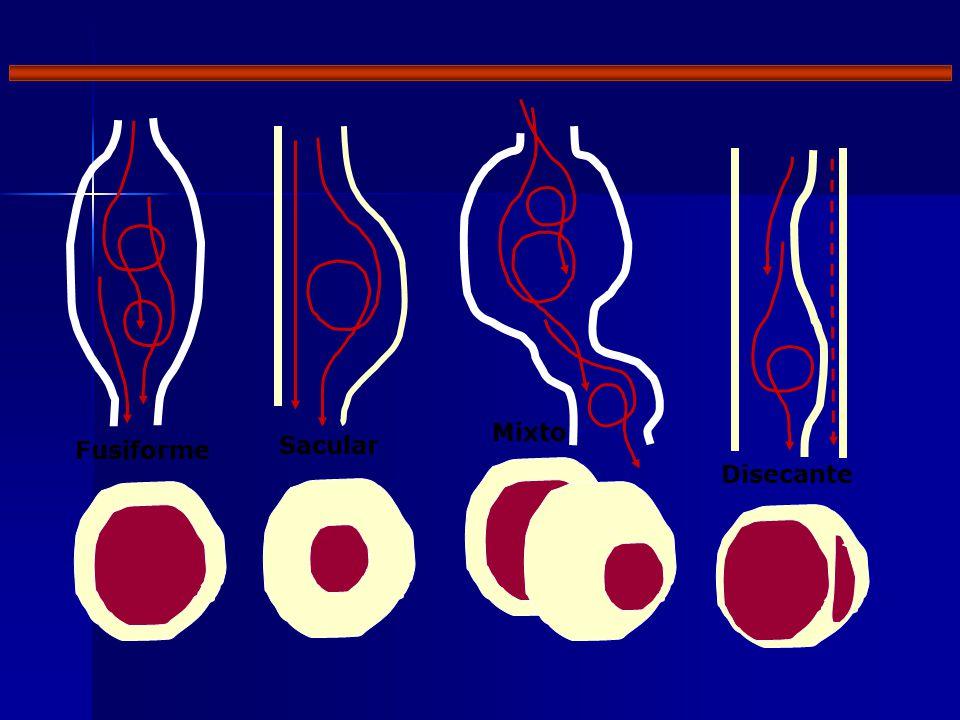 Fusiforme Sacular Mixto Disecante