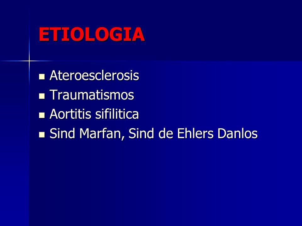 ETIOLOGIA Ateroesclerosis Ateroesclerosis Traumatismos Traumatismos Aortitis sifilitica Aortitis sifilitica Sind Marfan, Sind de Ehlers Danlos Sind Ma