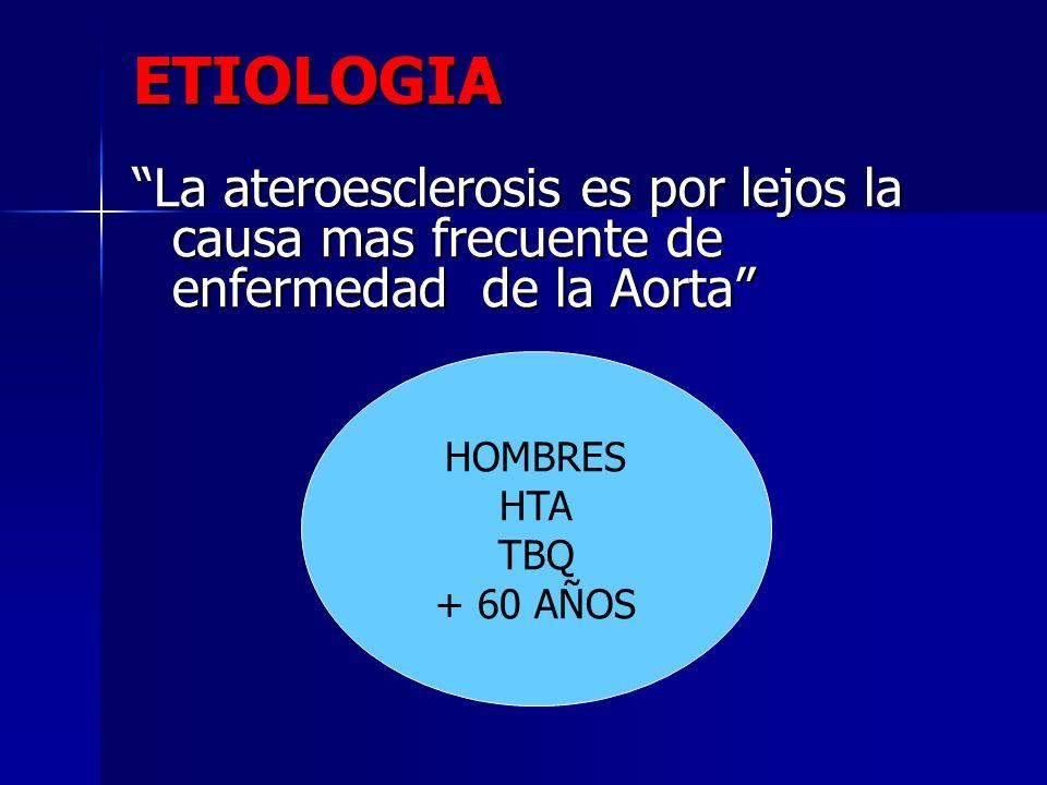 ETIOLOGIA La ateroesclerosis es por lejos la causa mas frecuente de enfermedad de la Aorta HombresHTATBQ + 60 años HOMBRES HTA TBQ + 60 AÑOS