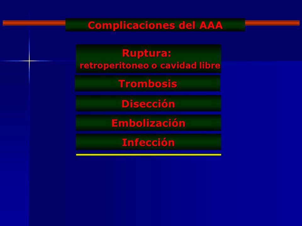 Complicaciones del AAA Ruptura: retroperitoneo o cavidad libre retroperitoneo o cavidad libre Trombosis Disección Embolización Infección