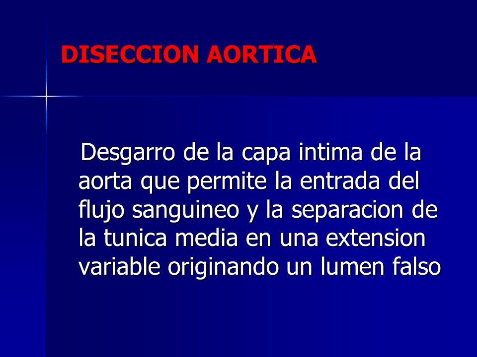 Desgarro de la capa intima de la aorta que permite la entrada del flujo sanguineo y la separacion de la tunica media en una extension variable origina