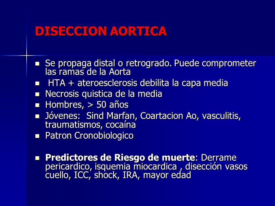 DISECCION AORTICA Se propaga distal o retrogrado. Puede comprometer las ramas de la Aorta Se propaga distal o retrogrado. Puede comprometer las ramas