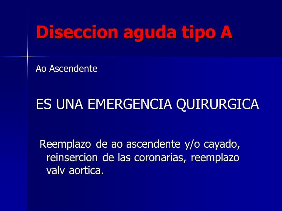 Diseccion aguda tipo A Ao Ascendente ES UNA EMERGENCIA QUIRURGICA Reemplazo de ao ascendente y/o cayado, reinsercion de las coronarias, reemplazo valv