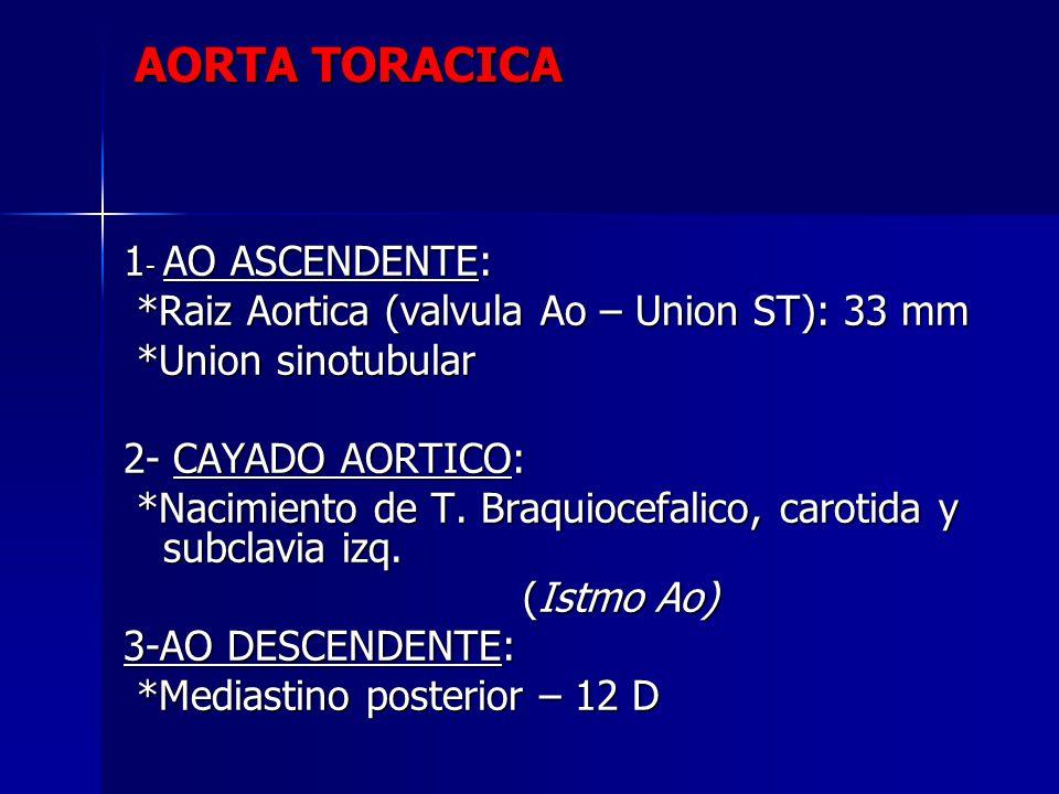 AORTA TORACICA 1 - AO ASCENDENTE: *Raiz Aortica (valvula Ao – Union ST): 33 mm *Raiz Aortica (valvula Ao – Union ST): 33 mm *Union sinotubular *Union