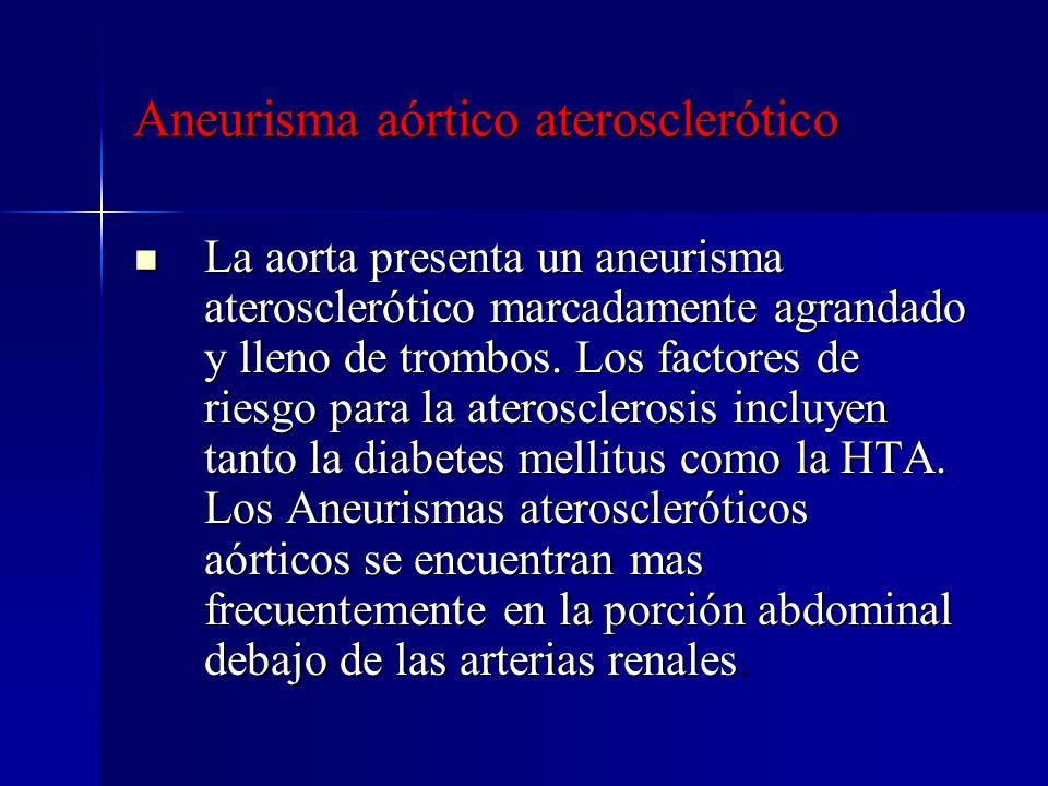 Aneurisma aórtico aterosclerótico La aorta presenta un aneurisma aterosclerótico marcadamente agrandado y lleno de trombos. Los factores de riesgo par