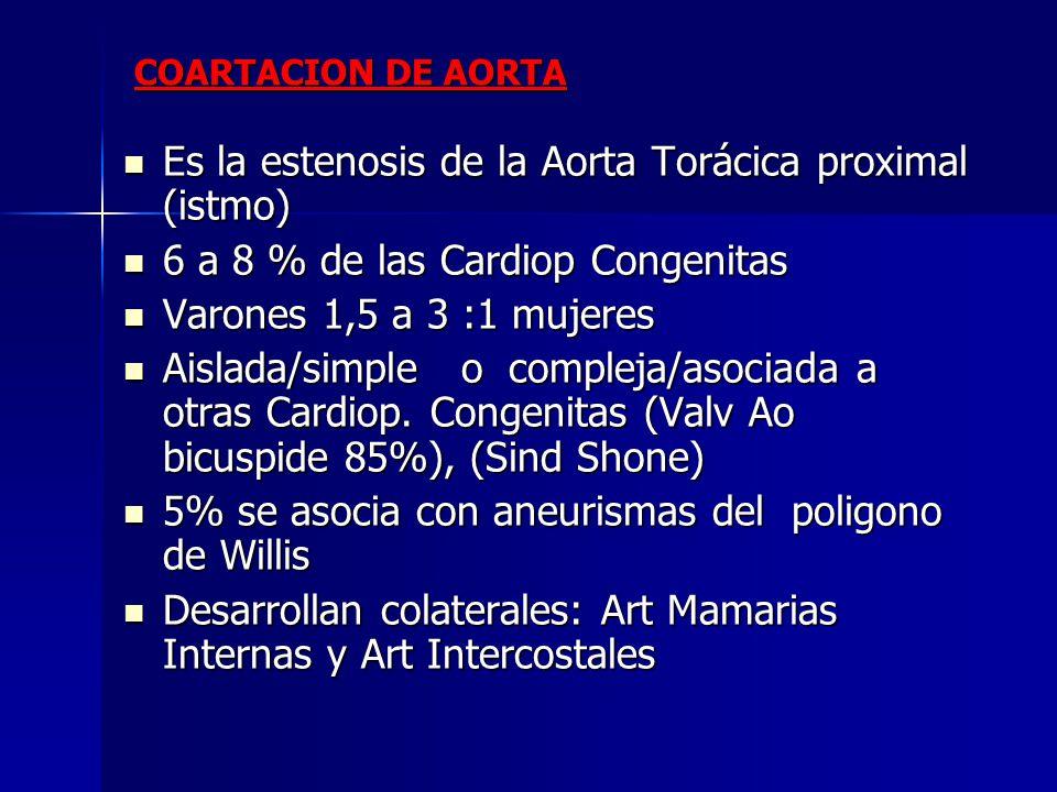 Es la estenosis de la Aorta Torácica proximal (istmo) Es la estenosis de la Aorta Torácica proximal (istmo) 6 a 8 % de las Cardiop Congenitas 6 a 8 %