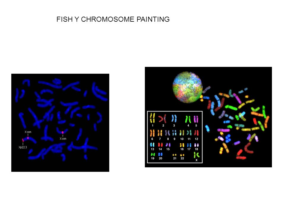 FISH Y CHROMOSOME PAINTING