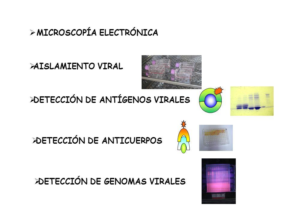 AISLAMIENTO VIRAL DETECCIÓN DE ANTÍGENOS VIRALES DETECCIÓN DE GENOMAS VIRALES DETECCIÓN DE ANTICUERPOS MICROSCOPÍA ELECTRÓNICA