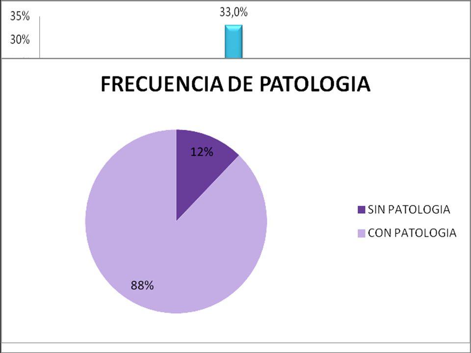 RESULTADOS 2% RN antec. tóxico materno 2011: 3,5 veces más que 2009 Prematuros: 24%; med EG 37,4 sem.; PEG 21% Internac. UTI/UCI 93%, med 12 días. Rei