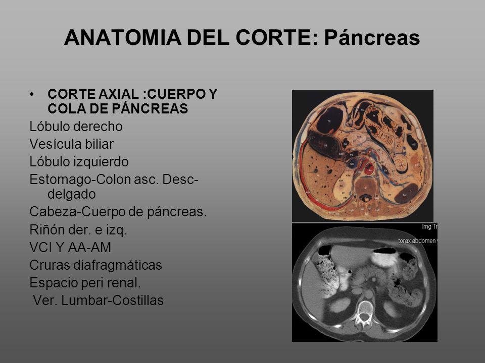 ANATOMIA DEL CORTE: Páncreas CORTE AXIAL :CUERPO Y COLA DE PÁNCREAS Lóbulo derecho Vesícula biliar Lóbulo izquierdo Estomago-Colon asc.