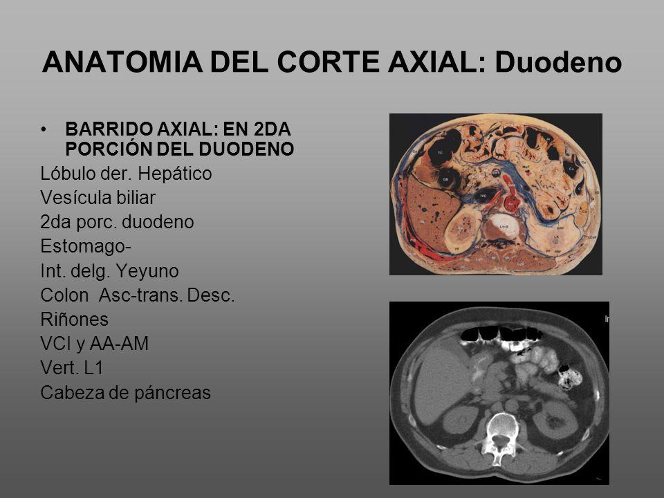 ANATOMIA DEL CORTE AXIAL: Duodeno BARRIDO AXIAL: EN 2DA PORCIÓN DEL DUODENO Lóbulo der.